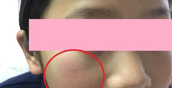子供の顔の怪我