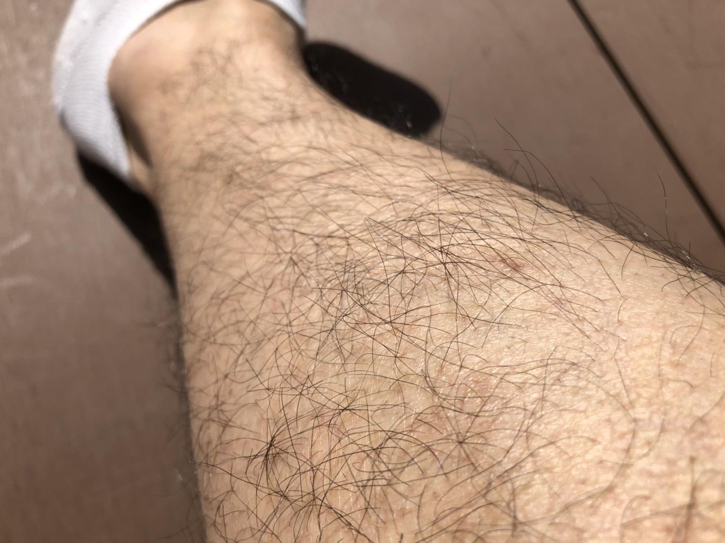 AGAスキンクリニックの内服薬を飲んで4か月後のすね毛の様子